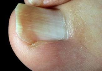 Ніготь вріс в палець