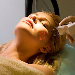 Омолодження шкіри обличчя за допомогою методу фракційного фототермоліза