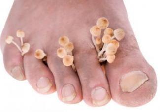Симптоми грибка нігтів на ногах