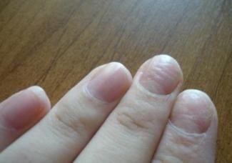 Хвилясті нігті